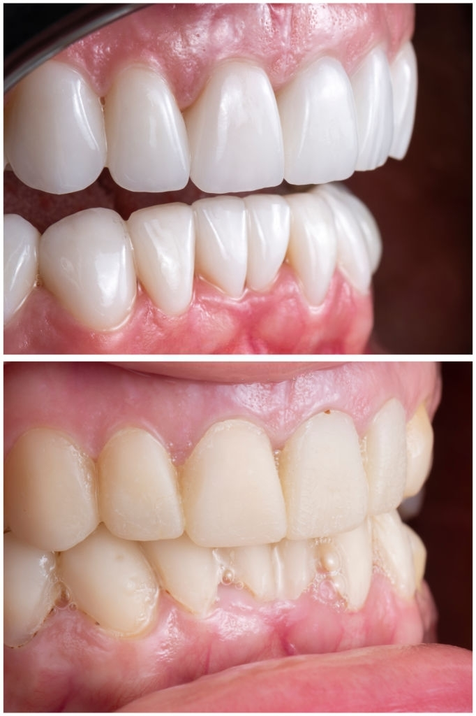before and after picture after fixing 20 unit emax press ceramic veneers